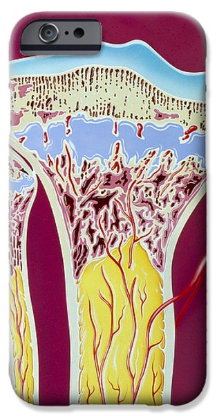 Disorder iPhone Cases - Artwork Of Rickets In Tibia And Fibula Bones iPhone Case by John Bavosi