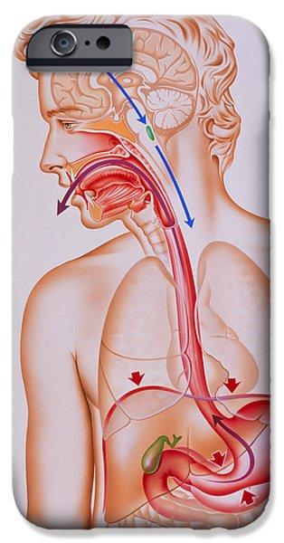 Mechanism iPhone Cases - Artwork Of Vomiting Mechanism In Human Body iPhone Case by John Bavosi