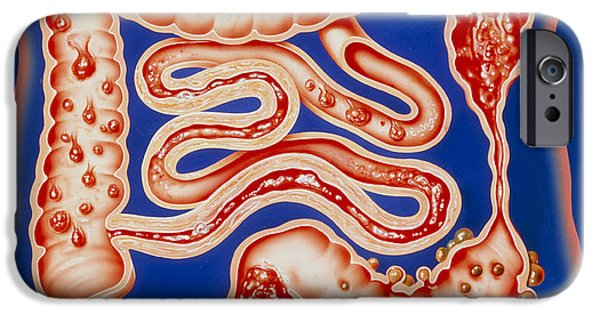 Intestinal iPhone Cases - Artwork Showing A Range Of Intestinal Diseases. iPhone Case by John Bavosi
