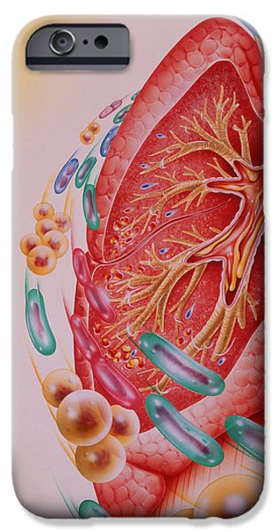 Disorder iPhone Cases - Bacterial Infection Of Lung iPhone Case by John Bavosi