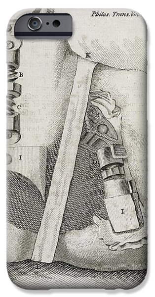 Bone-setting Mechanism, 18th Century iPhone Case by Middle Temple Library