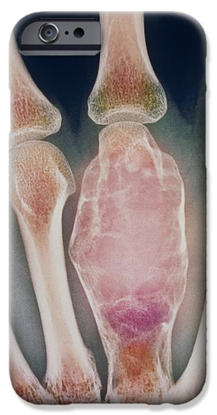 Disorder iPhone Cases - Bone Tumour, X-ray iPhone Case by Cnri