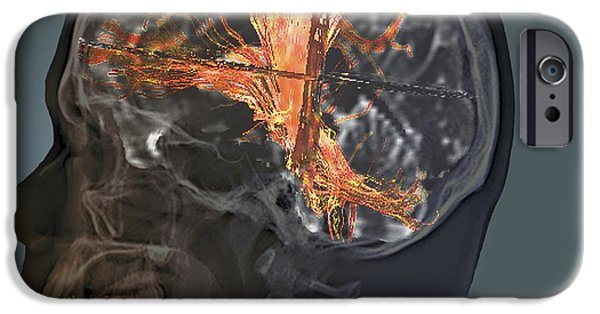 3-d iPhone Cases - Brain Cancer, Mri Scan iPhone Case by Zephyr