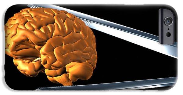 Tweezers iPhone Cases - Brain Research iPhone Case by Pasieka