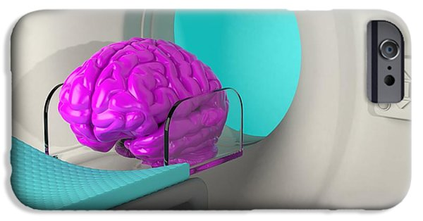 Disorder iPhone Cases - Brain Scan, Conceptual Artwork iPhone Case by Laguna Design