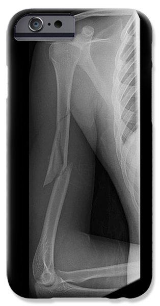 Disorder iPhone Cases - Broken Arm Bone, Digital X-ray iPhone Case by Du Cane Medical Imaging Ltd