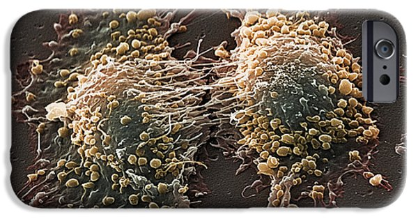 Disorder iPhone Cases - Cancer Cell Division iPhone Case by Steve Gschmeissner