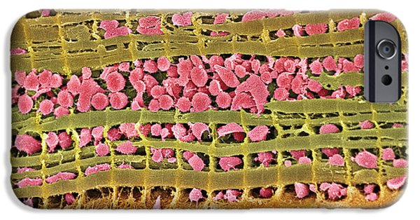 Scanning Electron Microscope Photographs iPhone Cases - Cardiac Muscle, Sem iPhone Case by Steve Gschmeissner