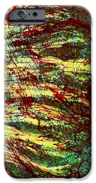 Cat Tongue Tissue, Light Micrograph iPhone Case by Dr Keith Wheeler