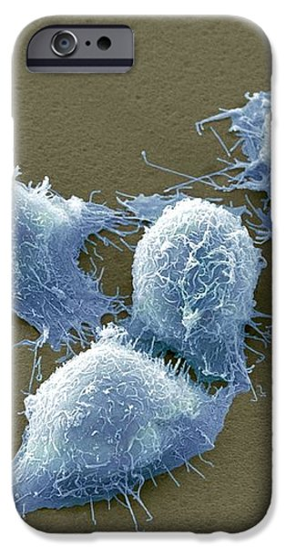 Cervical Cancer Cells, Sem iPhone Case by Steve Gschmeissner