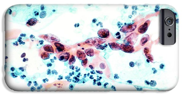 Histopathology iPhone Cases - Cervical Cancer, Light Micrograph iPhone Case by National Cancer Institute