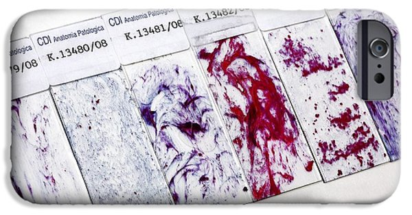 Histopathology iPhone Cases - Cervical Smear Slides iPhone Case by Mauro Fermariello
