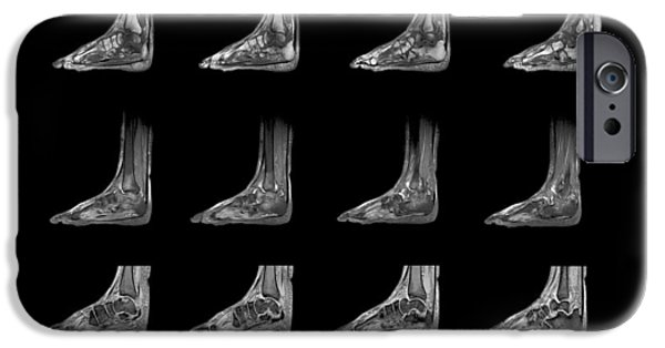 Disorder iPhone Cases - Charcot Arthropathy, Mri Scans iPhone Case by Zephyr