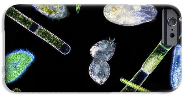 Protozoa iPhone Cases - Ciliate Protozoa, Light Micrograph iPhone Case by Laguna Design