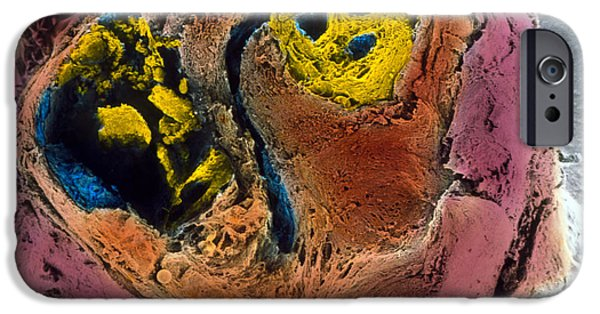 Disorder iPhone Cases - Colour Sem Of Atherosclerosis In Coronary Artery iPhone Case by Professor P.m. Motta, G. Macchiarelli, S.a Nottola