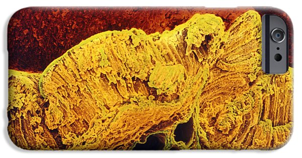 Mucosa iPhone Cases - Colour Sem Of Cross-section Through Stomach Wall iPhone Case by Prof Cinti & V. Gremetspl