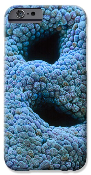 Mucosa iPhone Cases - Coloured Sem Of Gastric Pits In The Stomach Mucosa iPhone Case by Steve Gschmeissner