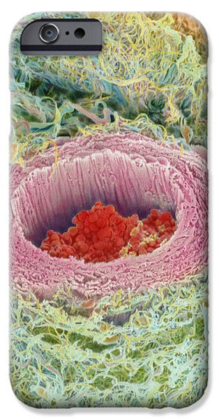 Photos With Red iPhone Cases - Coloured Sem Of Section Through A Human Arteriole iPhone Case by Steve Gschmeissner