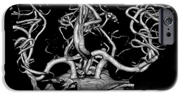 Abnormal iPhone Cases - Ct Angiogram Of Aneurysm iPhone Case by Medical Body Scans