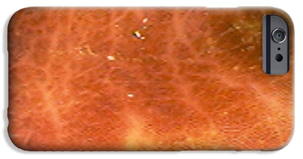 Endoscopy iPhone Cases - Dark-stained Colon iPhone Case by David M. Martin, Md