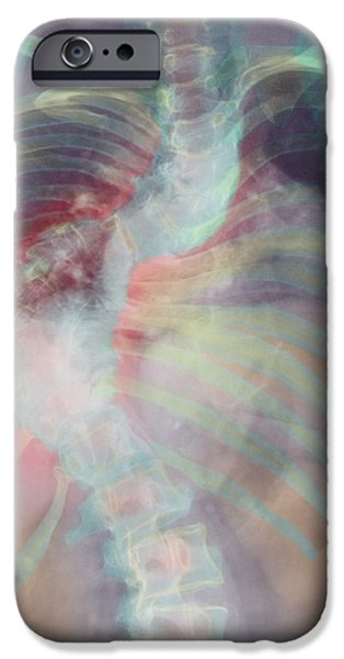 Disorder iPhone Cases - Deformed Spine In Scoliosis, Coloured X-ray iPhone Case by