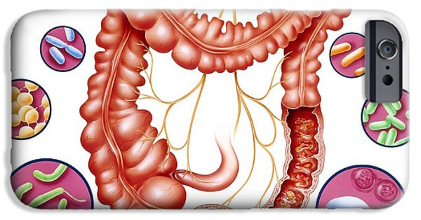 Disorder iPhone Cases - Diarrhoea, Artwork iPhone Case by John Bavosi