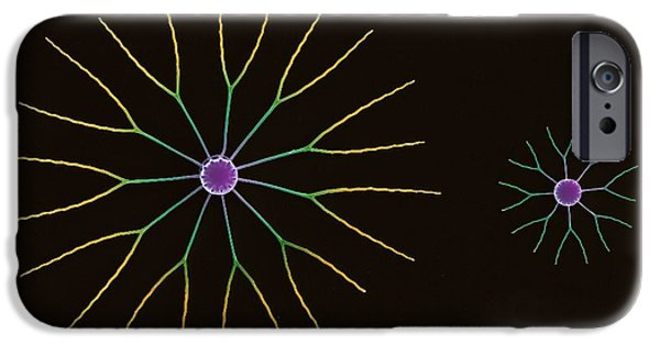 Diatoms Photographs iPhone Cases - Diatom Algae, Sem iPhone Case by Steve Gschmeissner
