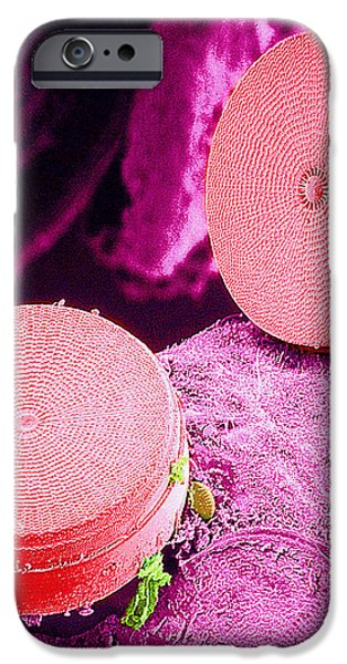 Diatom Algae, Sem iPhone Case by Susumu Nishinaga
