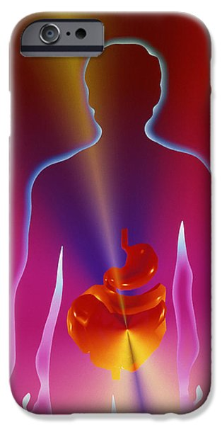 Gut iPhone Cases - Digestive System iPhone Case by Pasieka
