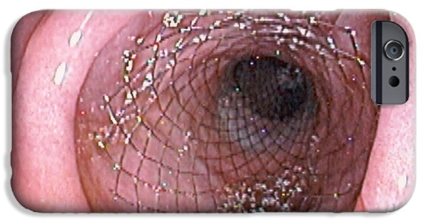 Endoscope iPhone Cases - Duodenal Stent iPhone Case by David M. Martin, Md