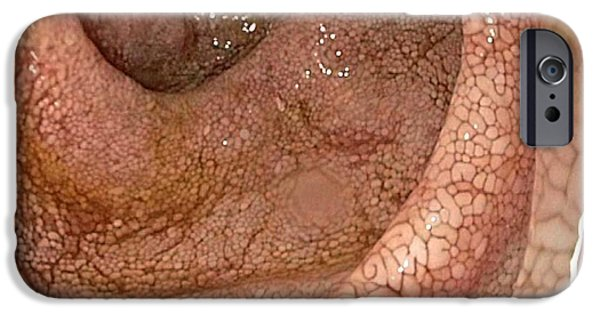 Endoscopic iPhone Cases - Duodenum In Whipples Disease iPhone Case by Gastrolab