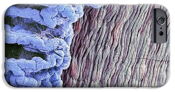 Scanning Electron Microscope Photographs iPhone Cases - Eye Anatomy, Sem iPhone Case by Steve Gschmeissner
