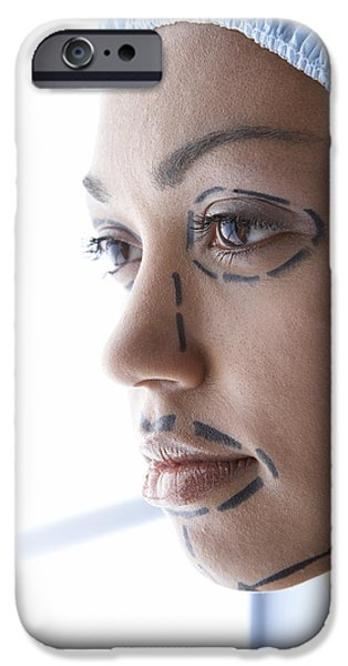 Beauty Mark iPhone Cases - Facelift Surgery Markings iPhone Case by Adam Gault
