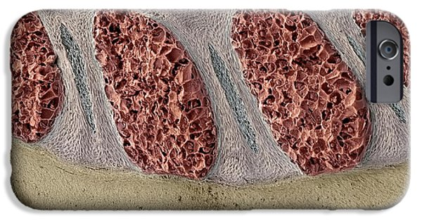 Disc iPhone Cases - Foetal Spinal Column iPhone Case by Steve Gschmeissner