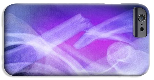 Disorder iPhone Cases - Fractured Collar Bone, X-ray iPhone Case by Du Cane Medical Imaging Ltd