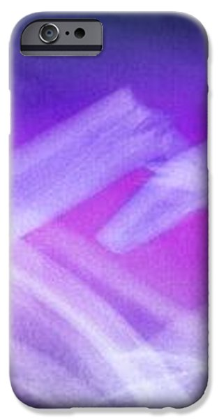 Fractured Collar Bone, X-ray iPhone Case by Du Cane Medical Imaging Ltd