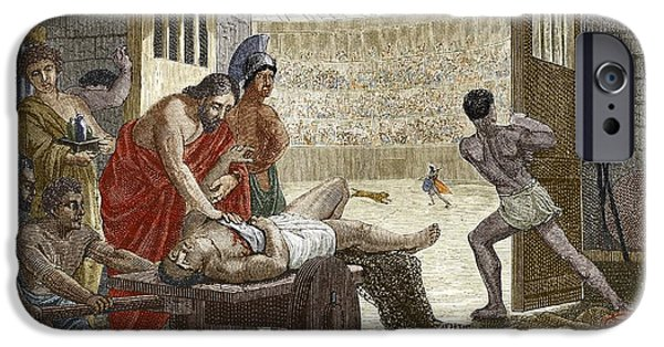 Young Turkey iPhone Cases - Galen Treating A Gladiator In Pergamum iPhone Case by Sheila Terry