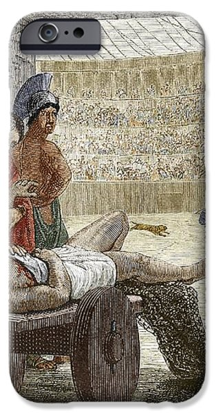 Galen Treating A Gladiator In Pergamum iPhone Case by Sheila Terry