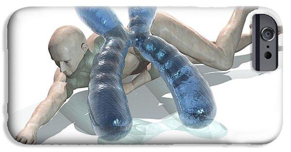 Disorder iPhone Cases - Genetic Disease, Conceptual Artwork iPhone Case by Laguna Design