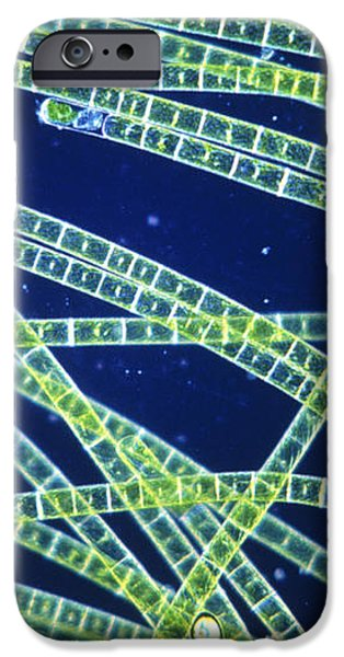 Green Filamentous Alga, Zygnema iPhone Case by John Walsh