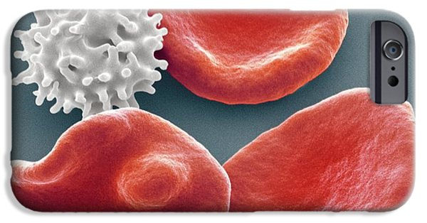 Abnormal iPhone Cases - Healthy And Crenated Red Blood Cells, Sem iPhone Case by Steve Gschmeissner
