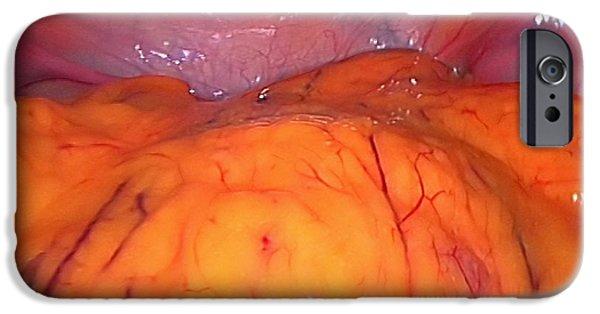 Endoscopy iPhone Cases - Healthy Bladder, Laparoscopic View iPhone Case by Miriam Maslo
