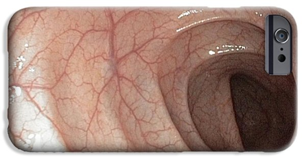 Endoscope iPhone Cases - Healthy Colon, Large Intestine iPhone Case by Gastrolab