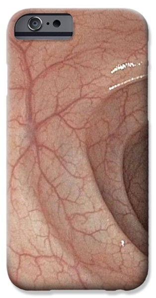 Healthy Colon, Large Intestine iPhone Case by Gastrolab
