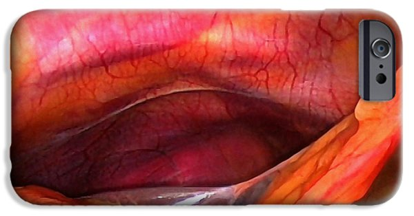 Endoscopy iPhone Cases - Healthy Liver, Laparoscopic View iPhone Case by Miriam Maslo