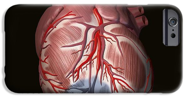 Cut-outs iPhone Cases - Heart Attack, Artwork iPhone Case by Henning Dalhoff