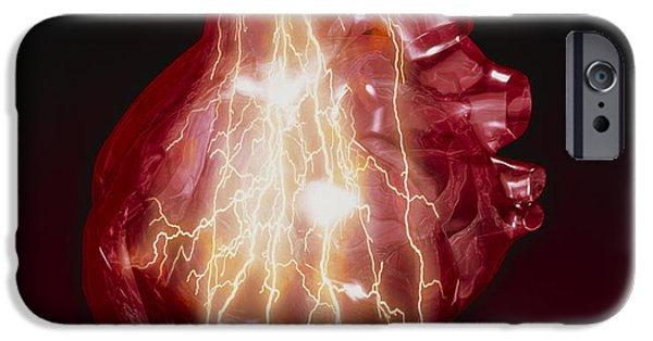 Disorder iPhone Cases - Heart Attack iPhone Case by Victor Habbick Visions