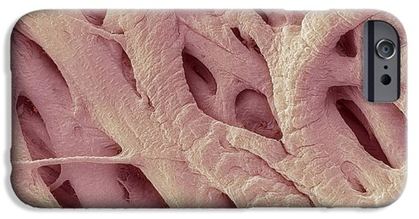 Scanning Electron Microscope Photographs iPhone Cases - Heart Strings, Sem iPhone Case by Steve Gschmeissner