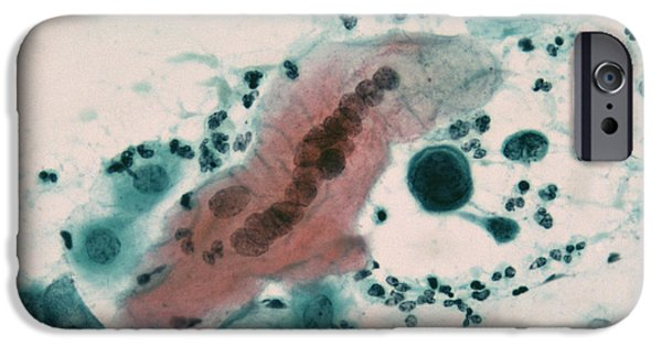 Histopathology iPhone Cases - Herpes Simplex Infection iPhone Case by Dr. E. Walker