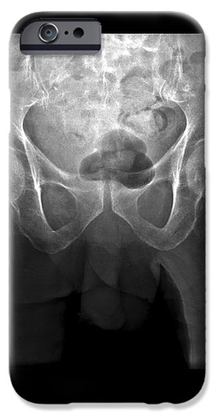 Hip Fracture, Digital X-ray iPhone Case by Du Cane Medical Imaging Ltd